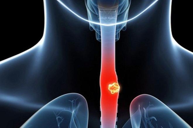7 yếu tố làm tăng nguy cơ ung thư thực quản - 1