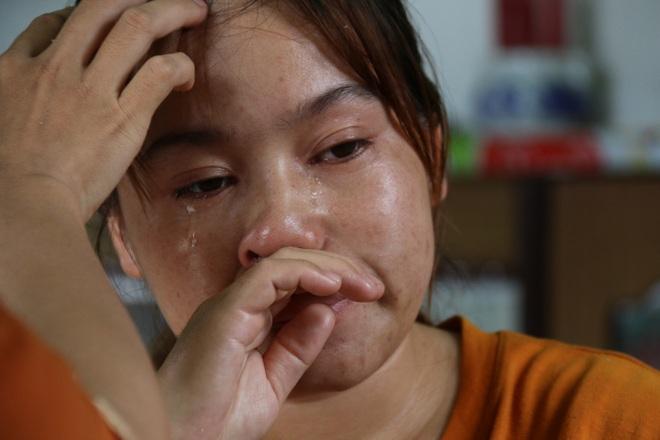 Quặn lòng bé gái da rụng như vảy cá khô, khóc thảm thiết trong đau đớn! - 7