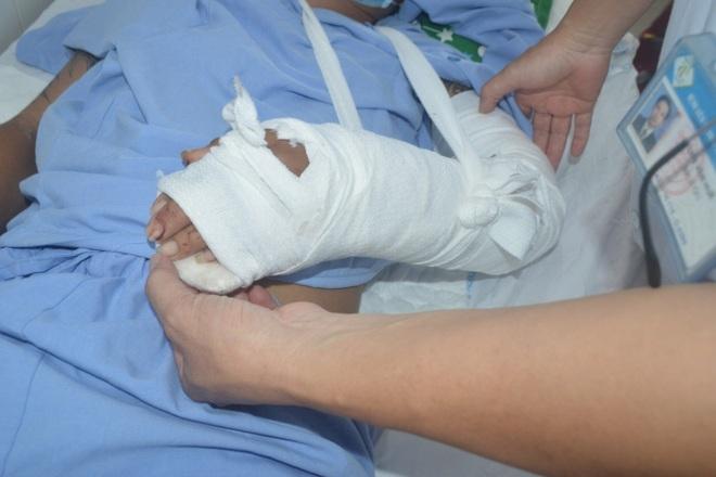 Nối thành công bàn tay bị đứt lìa cho nam thanh niên 32 tuổi - 2