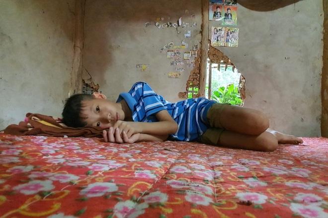 Người mẹ đau khổ ôm con trong ngôi nhà rách nát cầu xin sự sống - 2