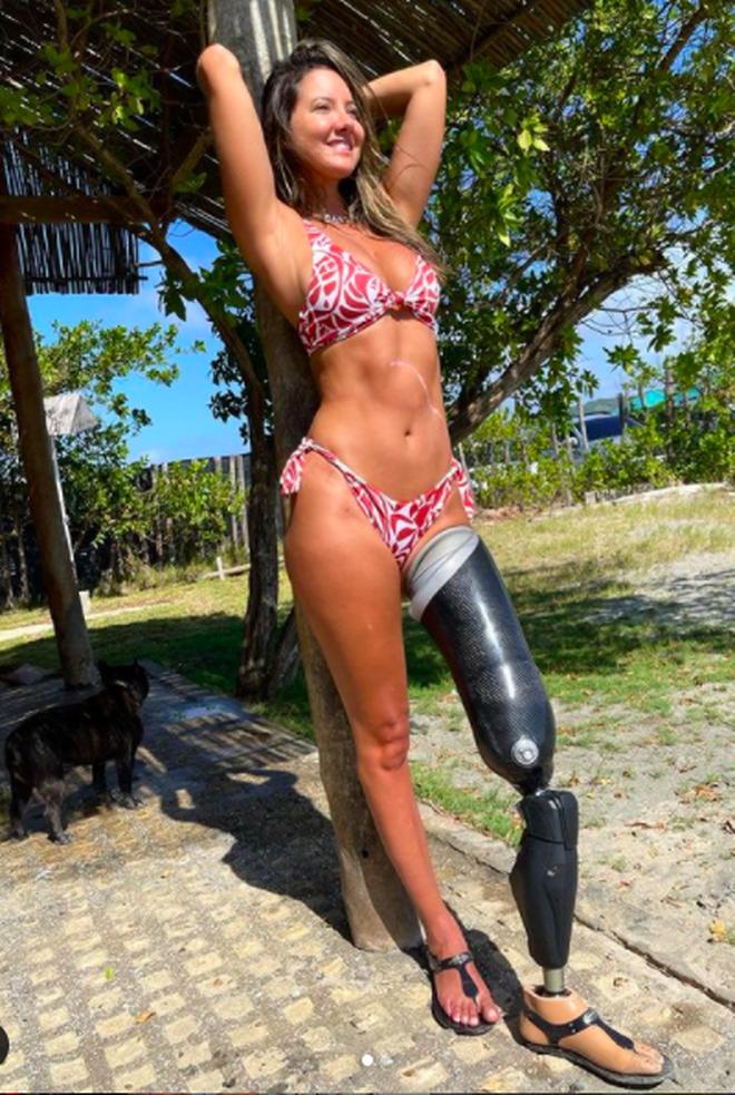 Hoa hậu bị cưa chân hồi phục diệu kỳ sau một năm - 4
