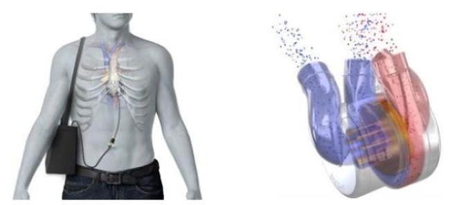 Sắp có tim nhân tạo toàn phần đầu tiên trên thế giới - 1
