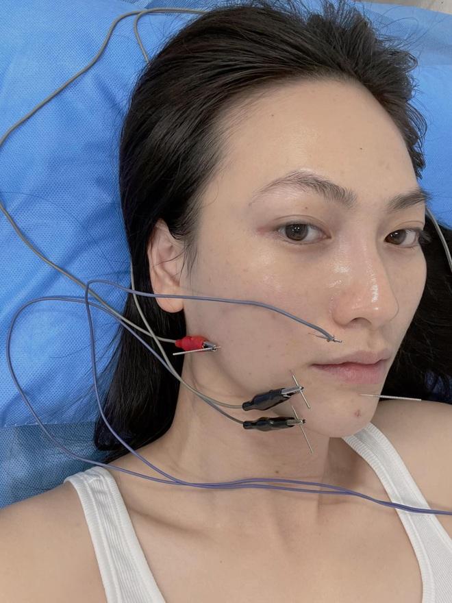 Phương Anh Đào bất ngờ chia sẻ bị lệch méo khuôn môi sau khi mổ tuyến giáp - 4