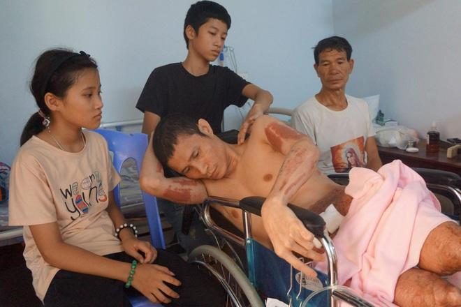 Người đàn ông bất hạnh chết mòn trên xe lăn, thương 2 đứa con tội nghiệp! - 8