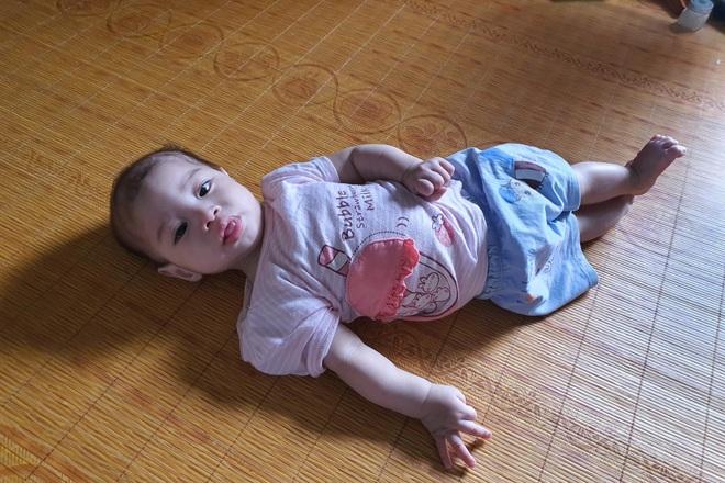 Nhói lòng cảnh bé gái 1 tuổi người mềm oặt, ngày lên cơn co giật mấy lần - 1