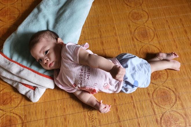 Nhói lòng cảnh bé gái 1 tuổi người mềm oặt, ngày lên cơn co giật mấy lần - 2