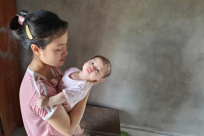 Nhói lòng cảnh bé gái 1 tuổi người mềm oặt, ngày lên cơn co giật mấy lần - 3