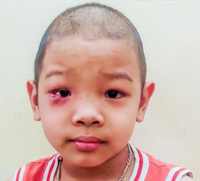 Cậu bé 7 tuổi tái ung thư: Mẹ vào thuốc... con mới sống được - 6