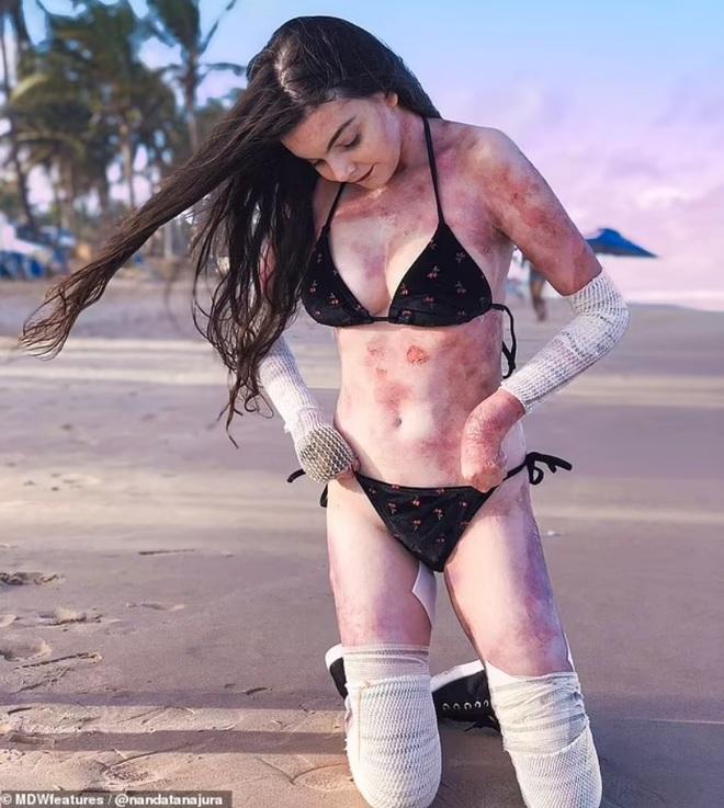 Ước mơ làm người mẫu của cô gái xinh đẹp mắc bệnh da giấy - 2