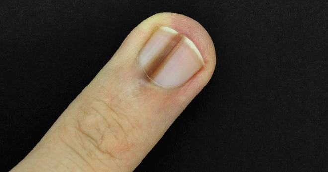 7 triệu chứng ở móng tay không nên bỏ qua