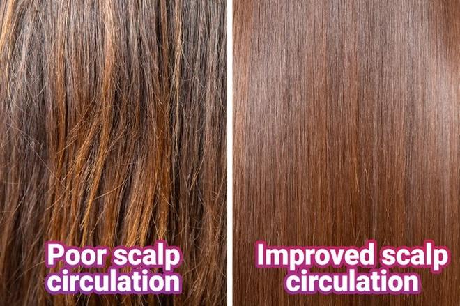 Mái tóc thay đổi ra sao nếu bạn uống cà phê mỗi ngày? - 2