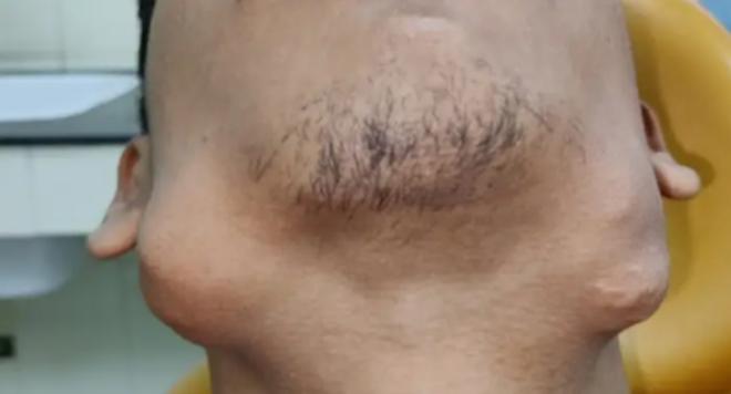 Thiếu niên biến dạng khuôn mặt vì khối u lạ, bác sĩ nhổ ra… 82 chiếc răng - 2
