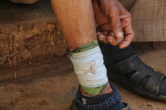 Vì chân bị nhiễm trùng, hoại tử nên ông Y Liêng Ê Ban không thể đến các bãi rác nhặt phế liệu.