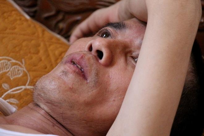 Người mẹ khóc cạn nước mắt khi con cùng cha đối diện với ung thư quái ác - 3