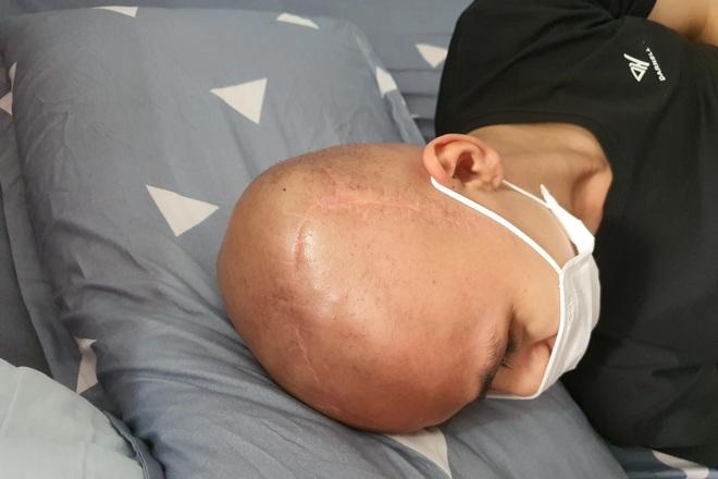 Xót xa cảnh chàng trai 15 tuổi, 3 lần phẫu thuật khẩn cầu sự giúp đỡ - 2