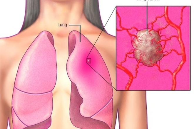 10 bệnh ung thư phổ biến thường không có triệu chứng sớm - 1