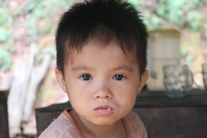 Những đứa trẻ nơi bìa rừng chỉ mong có đủ cơm ăn qua ngày - 7