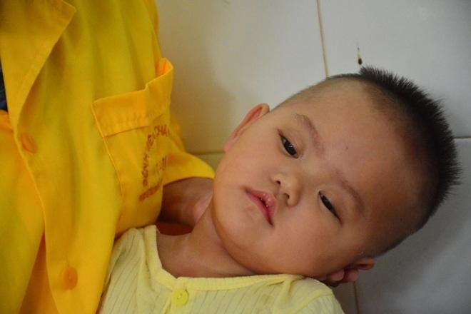 Xót xa cảnh bé gái nằm liệt sau một lần lên cơn sốt cao - 6