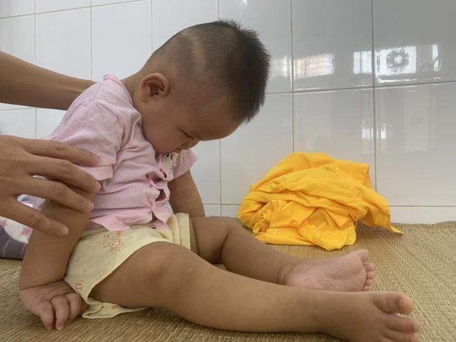 Xót xa cảnh bé gái nằm liệt sau một lần lên cơn sốt cao - 7
