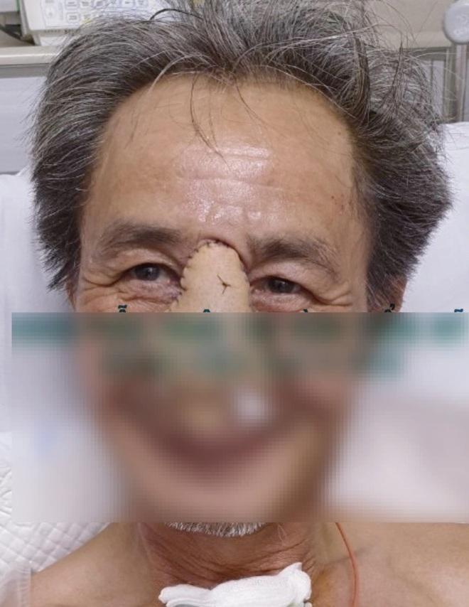 Phẫu thuật tái tạo toàn bộ mũi sau cắt bỏ ung thư - 1