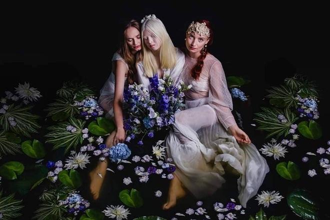 Cô gái bạch tạng từng bị cha mẹ bỏ rơi, trở thành người mẫu tạp chí Vogue - 1