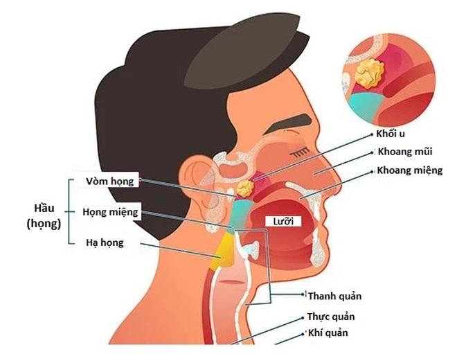 Chẩn đoán ung thư vòm họng bằng cách nào? - 1
