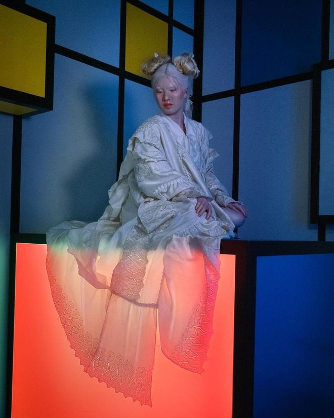 Cô gái bạch tạng từng bị cha mẹ bỏ rơi, trở thành người mẫu tạp chí Vogue - 7