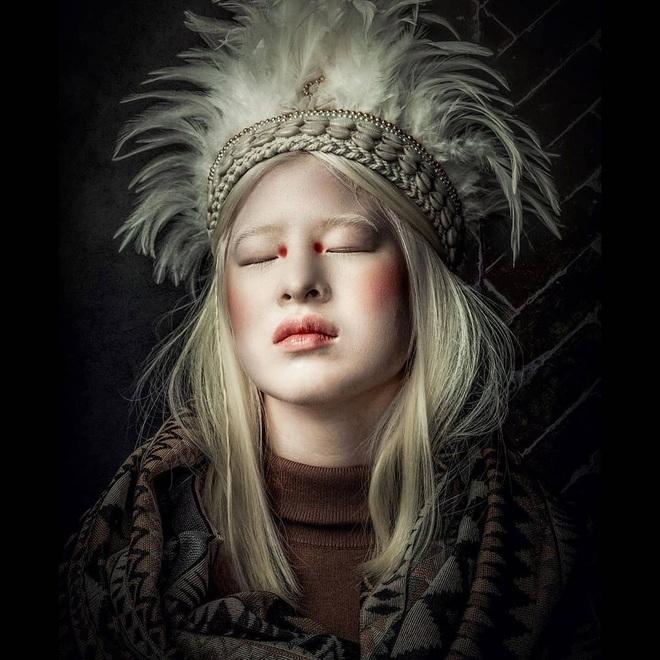 Cô gái bạch tạng từng bị cha mẹ bỏ rơi, trở thành người mẫu tạp chí Vogue - 6