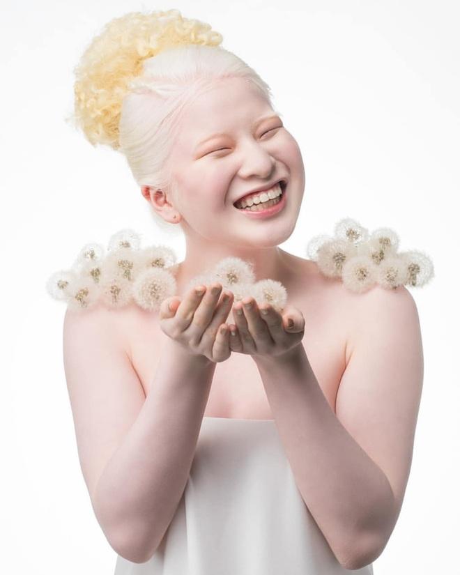 Cô gái bạch tạng từng bị cha mẹ bỏ rơi, trở thành người mẫu tạp chí Vogue - 5