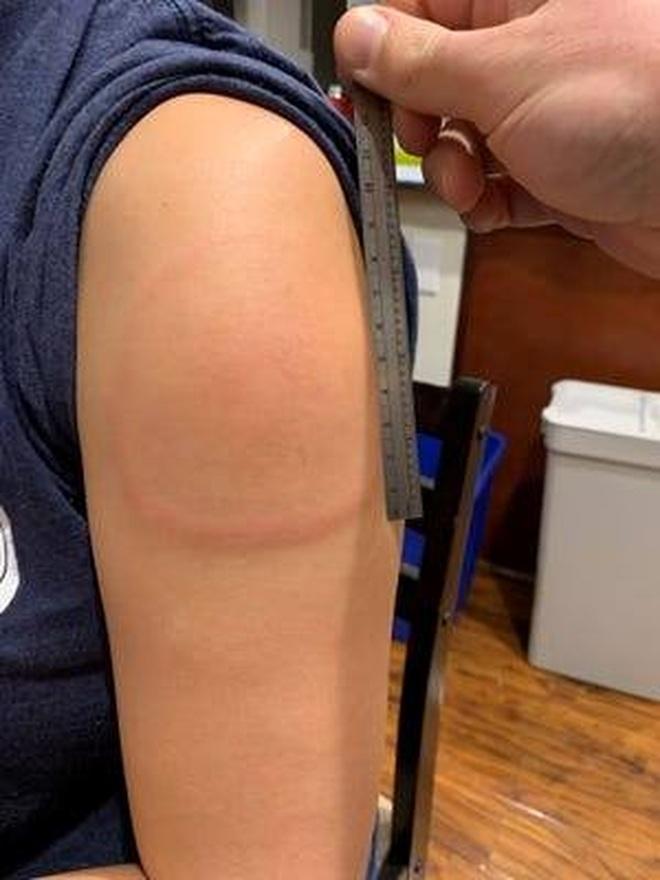 Hỏi đáp vắc xin: Điều trị Cánh tay Covid có giảm hiệu quả vắc xin? - 1