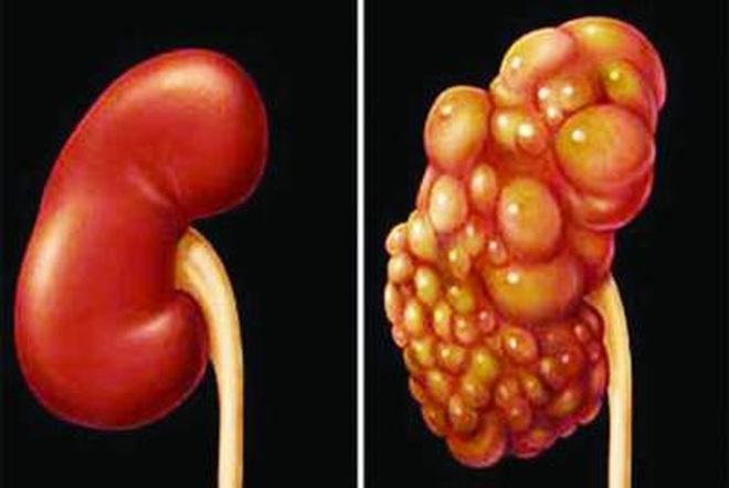 Ung thư thận: 60-80% bệnh nhân sống thêm 5 năm nếu phát hiện sớm - 1