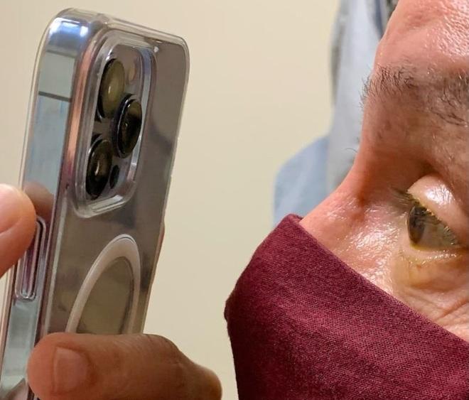 Dùng iPhone 13 Pro Max để khám mắt cho bệnh nhân - 1