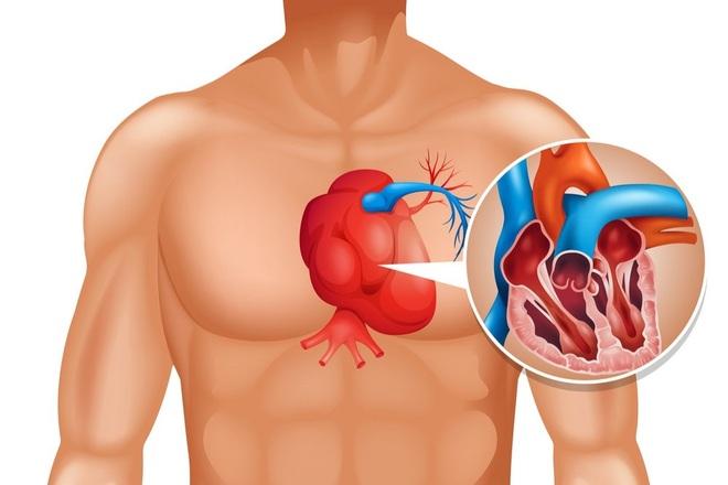 Triệu chứng của ung ung thư tim - 1