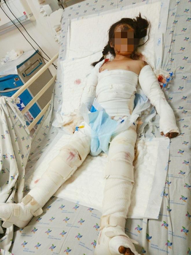 Ông Đoàn Ngọc Hải chở bé gái 7 tuổi bỏng toàn thân, hồi phục thần kỳ về quê - 1