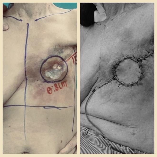 Vá lỗ hổng sâu vùng ngực do loét sau 20 năm điều trị ung thư vú - 1