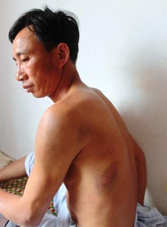Anh Nguyễn Hải Nam bị nhiều vết thương bầm tím khắp cơ thể