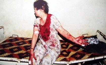 Bà Phương Thị Thạch và vết thương do bà Hiếu gây ra. Ảnh: Báo CATPHCM