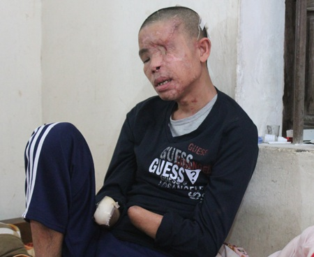 Từ trụ cột gia đình, anh Hảo trở thành phế nhân khi mất hai mắt, hai bàn tay.