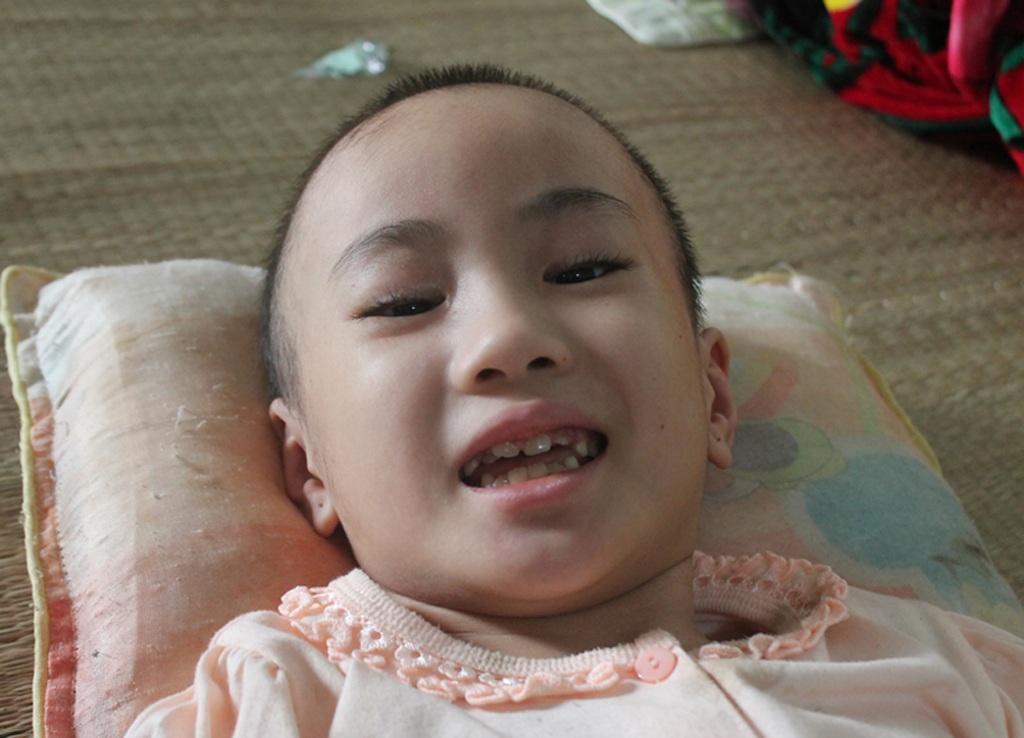 Trong những phút tỉnh tảo, Yến Nhi vẫn nở nụ cười dù mỗi cử động miệng của em đã rất khó khăn.