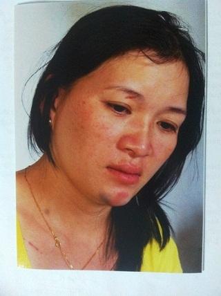 Chị Hồng với những vết thương trên mặt mà chị cho rằng do ông Đồng gây ra.