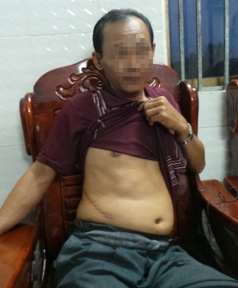 Anh Hồ Văn Tranh, một trong những trường hợp hiến thận tiếp xúc với PV chiều 4/4 (ảnh Phạm Tâm)