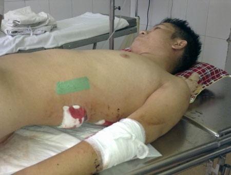 Anh Nguyễn Đức Dũng từng trải qua những ngày nguy kịch ở bệnh viện