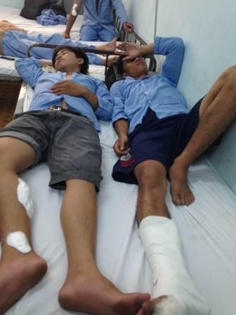 Đa số các vết thương đều ở vùng chân, tay