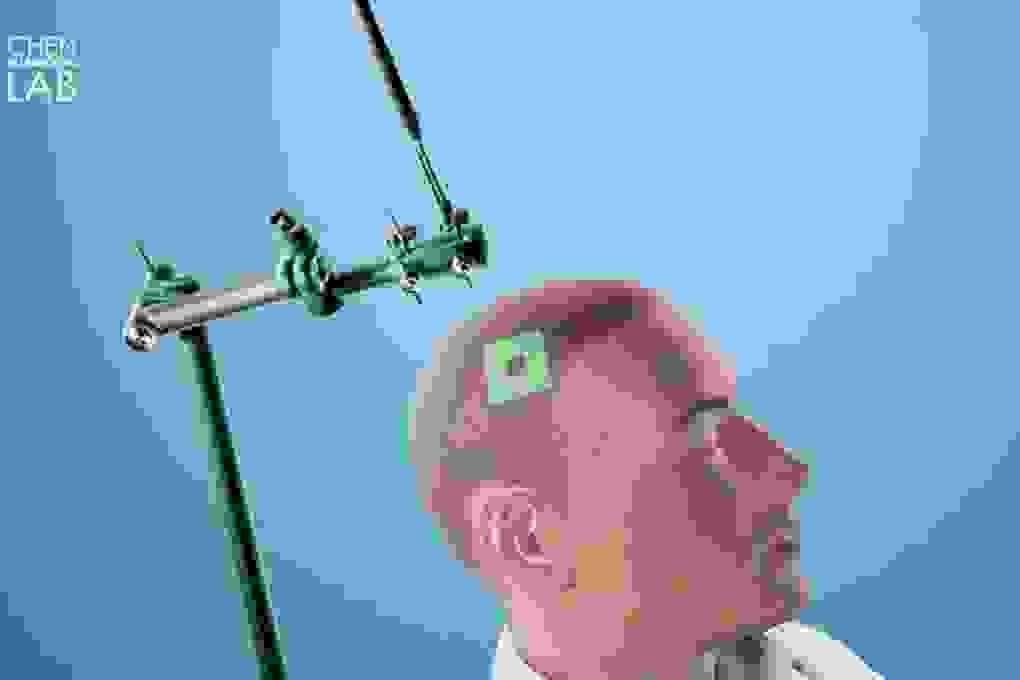 Sử dụng sóng siêu âm để chẩn đoán ung thư não