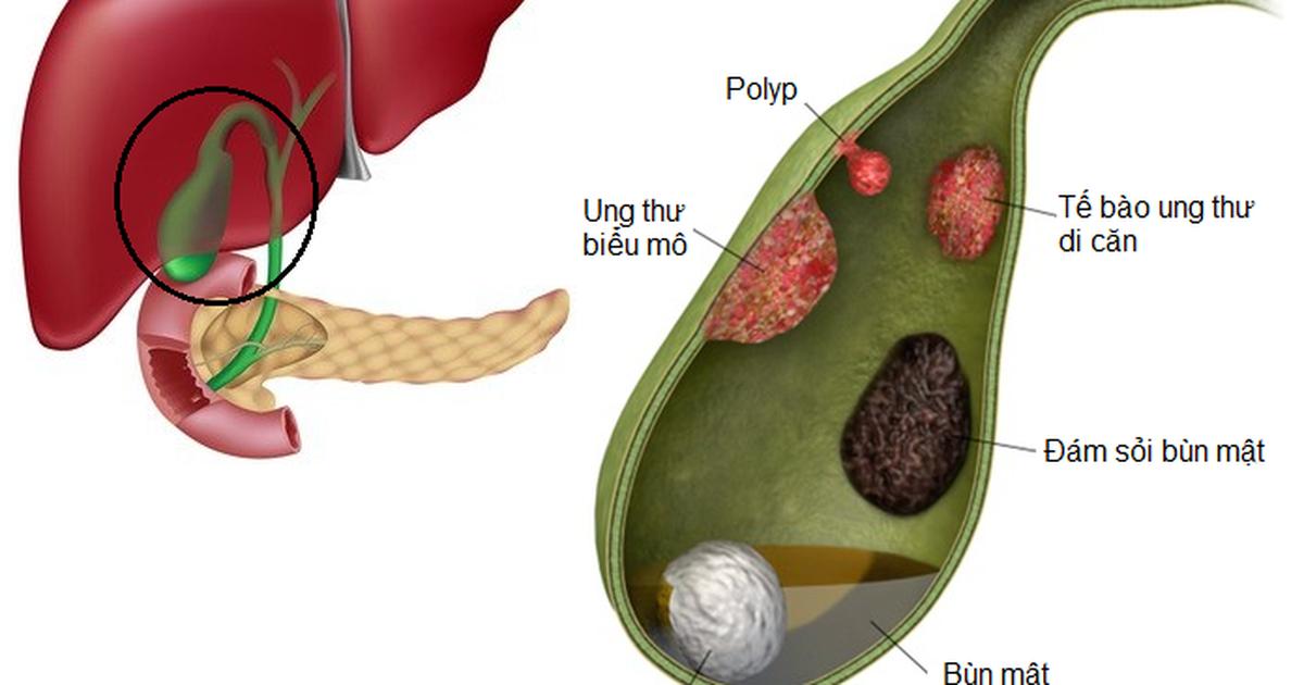 Polyp túi mật: Hiểu để điều trị đúng cách   Báo Dân trí
