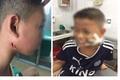Hà Nội: Trong nửa tháng, 2 anh em ruột tử vong do nhiễm khuẩn Whitmore