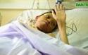 Ca ghép phổi đầu tiên tại bệnh viện Việt Đức