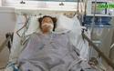 Nhiễm trùng huyết suy gan cấp nặng, tính mạng người mẹ trẻ nguy kịch.