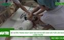 Giây phút sinh tử của bé Huyền Trang sau khi bị nồi cảnh sôi tưới lên người 4 năm trước.