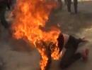 Người phụ nữ tự thiêu bị bỏng 40% cơ thể